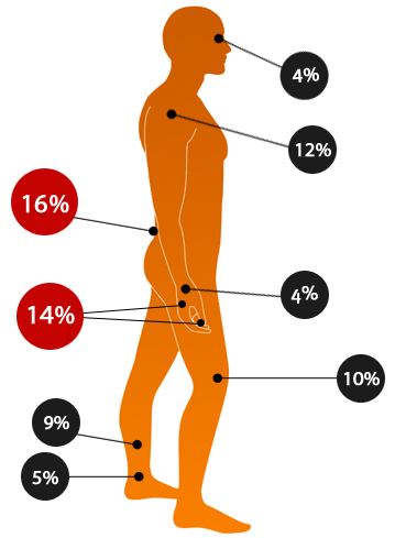 Depicts the most common injuries and hazards hotspots on the human body